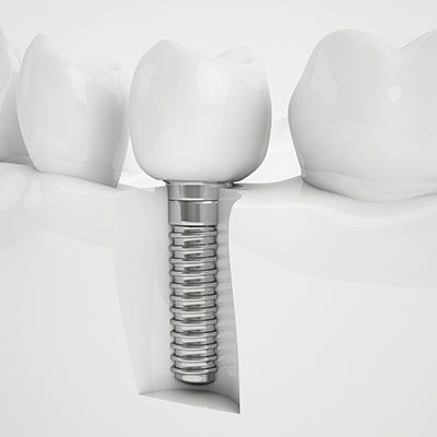 zahnarzt kassel goethestrasse implantate